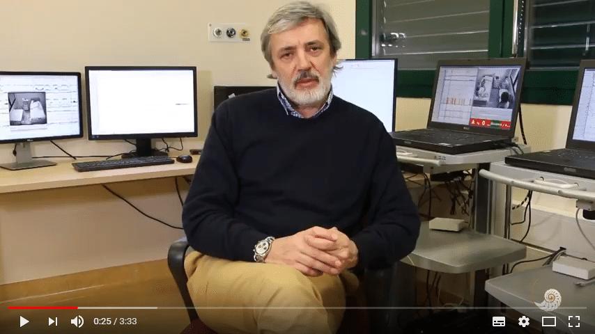 Intervista Prof. Plazzi sulla Narcolessia e come si sviluppa